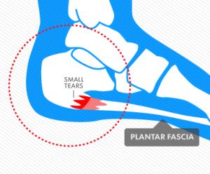 graphic of heel pain
